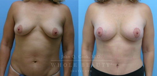 breast-lift-case-5