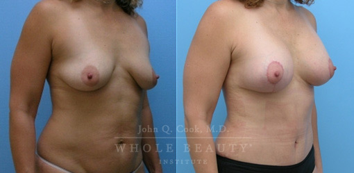 breast-lift-case-8