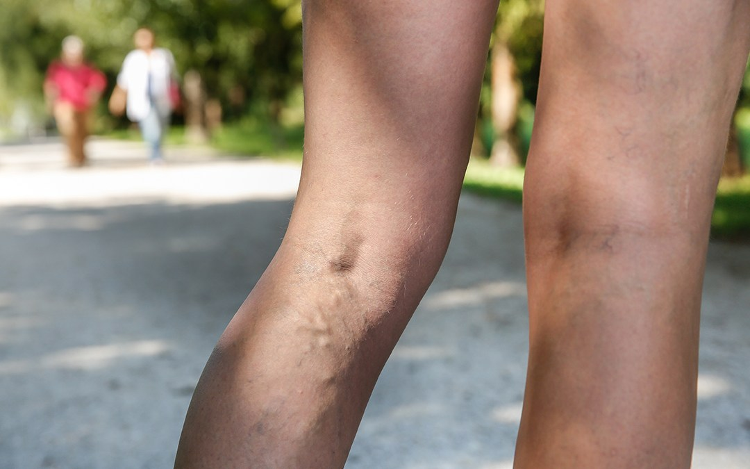 Tips to Keep Your Veins at Bay