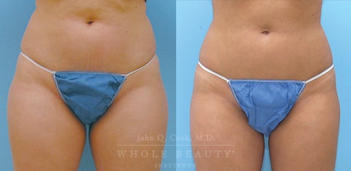 Vaser Ultrasonic Liposuction, Performed on the Thighs, Knees & Lower Abdomen