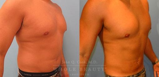 liposuction-case-5-03