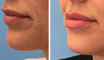 Lip Injections Gallery