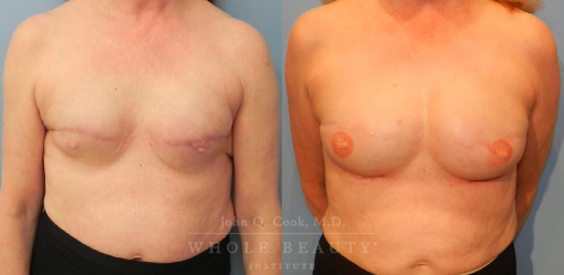 breast-reconstruction-case-10