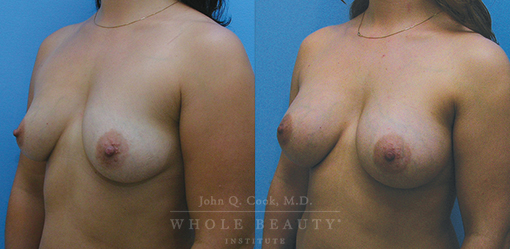breast aug before and after