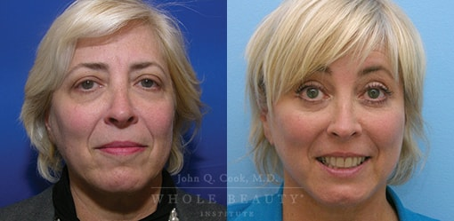 facelift patient before and after