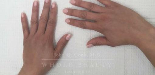 Hand Restoration After