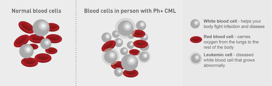 Illustration of white and red blood cells in people with Philadelphia chromosome–positive chronic myeloid leukemia (Ph+ CML)