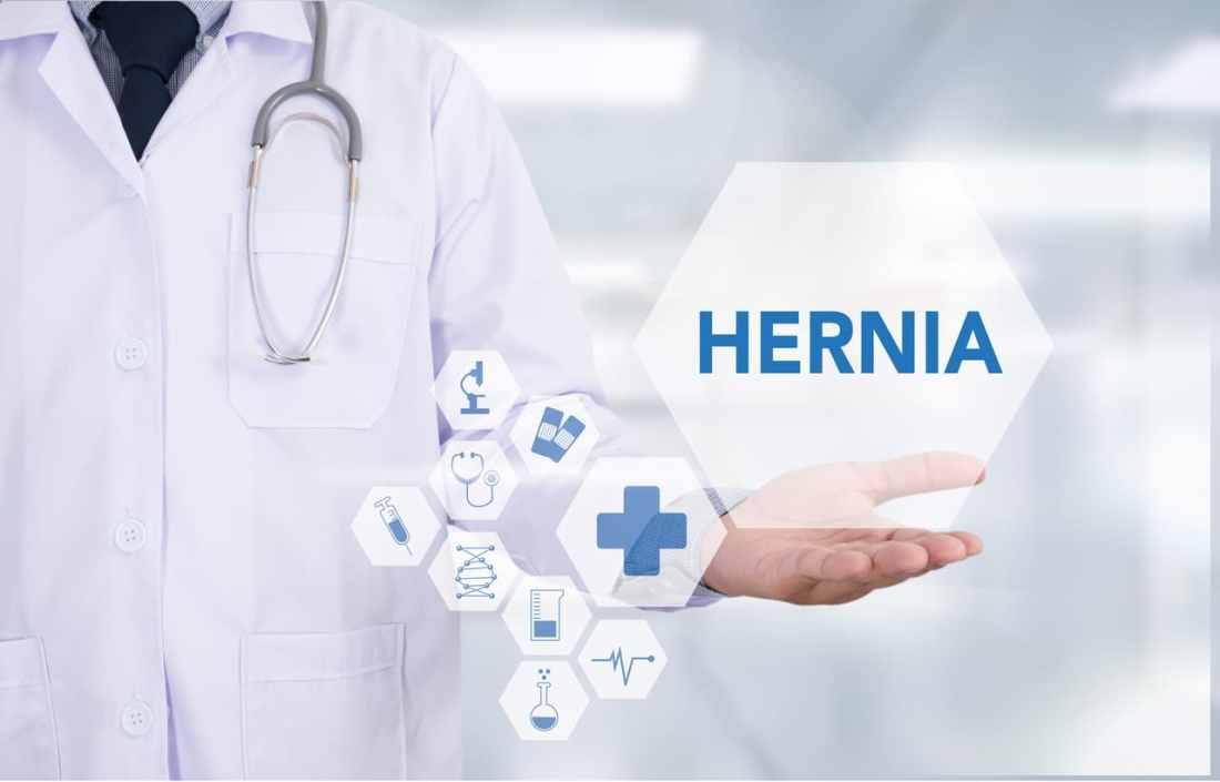 Gore Hernia Mesh Lawsuit