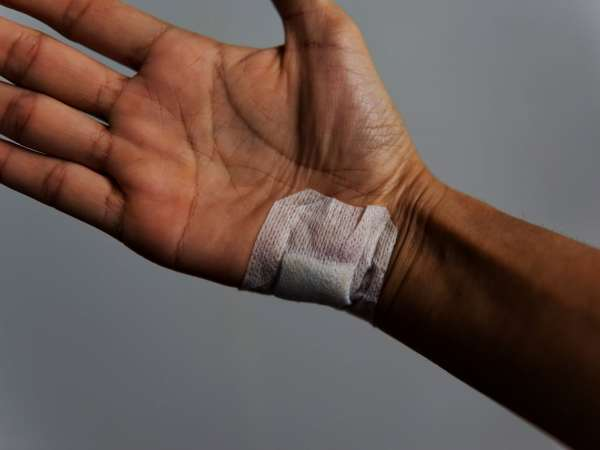 Laceration Injury Accident Lawyer