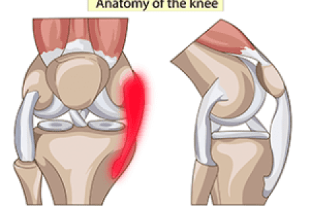 Interior knee ligament electronic wallpaper electronic wallpaper what is an mcl injury the knee diagram of a torn mcl knee ligament injuries knee ligament injury collateral ligament cl injury aftercare medlineplus medical ccuart Choice Image