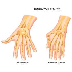 How Can You Fix Your Aching Fingers