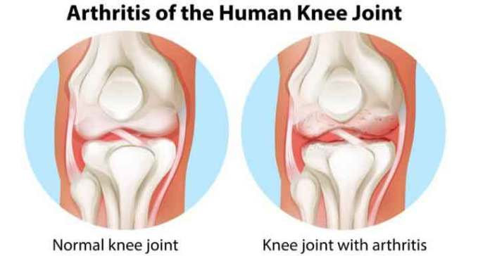 Knee Joint Detail