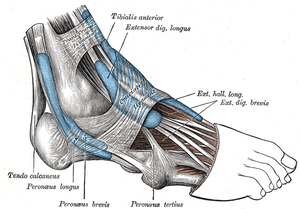Peroneal Tendonitis – What is it?