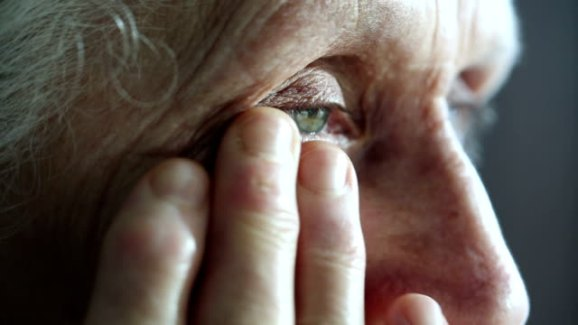 dry eyes arthritis