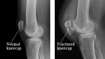 xray fractured knee cap