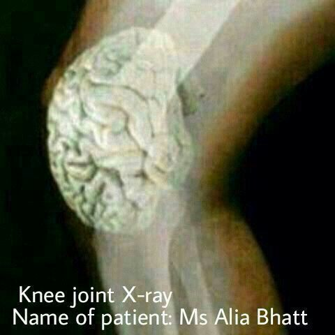 alia-bhatt-dumb-meme-jokes-on-jokofy (2)
