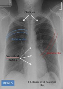 The various bony structures in the chest x-ray
