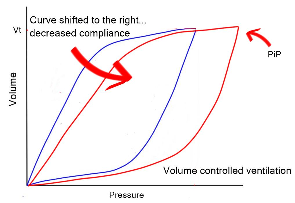 Mechanical ventilation series pressurevolume loop critical pressure volume curve compliance vc ccuart