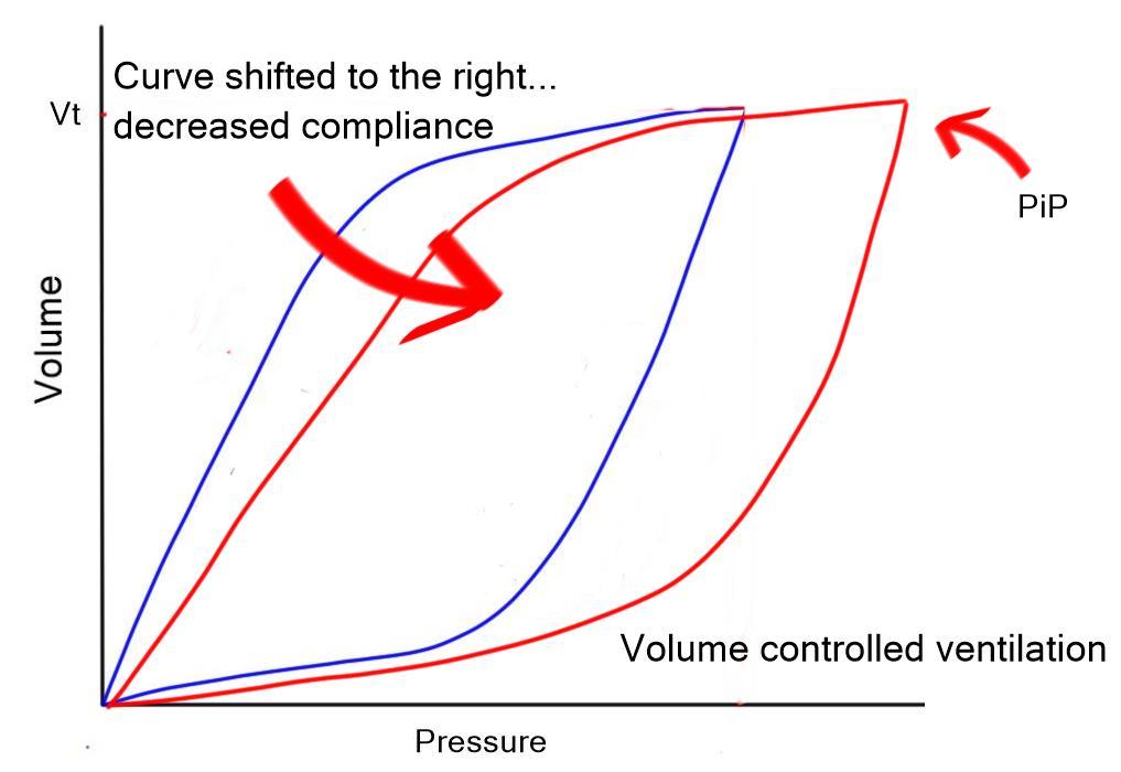 Pressure volume curve compliance VC