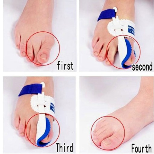 Bunion-Device-Hallux-Valgus-Orthopedic-Braces-Toe-Correction-Night-Foot-Care-Corrector-Thumb-Goodnight-Daily-Big-2.jpg