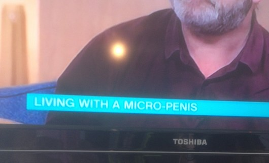 Living With A Micropenis Jopasdaughter