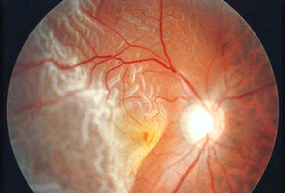 Desprendimiento de retina.