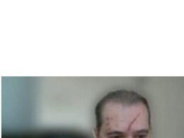 Dias Toffoli aparece em sessão remota do STF,  com o  rosto ferido