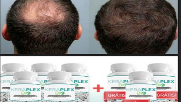 Anvisa suspende propaganda de produto usado para queda de cabelo