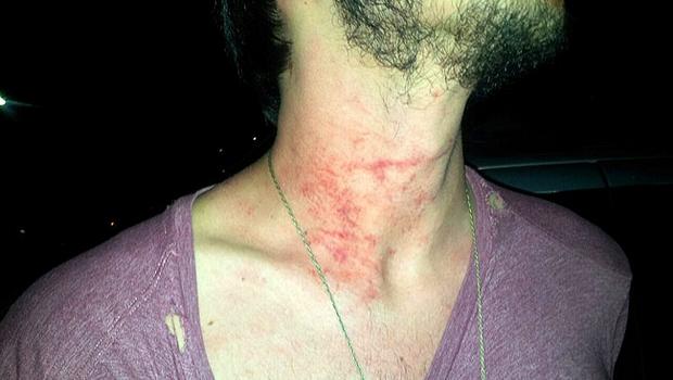 Estudante é agredido por PM dentro de estacionamento da PUC-GO
