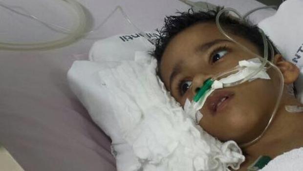 Estado de saúde do gêmeo siamês Heitor Brandão segue grave, porém estável