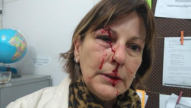Professora é agredida por aluno após expulsá-lo de sala e faz desabafo emocionante. Leia