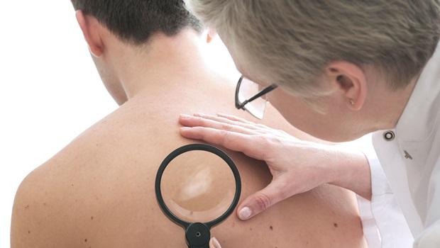 Hanseníase: saiba quais são os sintomas e tratamentos da doença