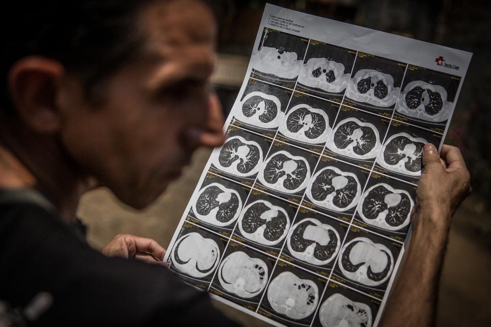 Intercept denuncia esquema para encobrir doenças por exploração de amianto em Goiás
