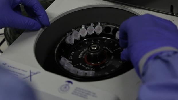 Código genético de vírus de dois brasileiros com coronavírus é diferente