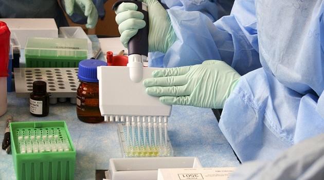 Aparecida de Goiânia contrata laboratório particular para ampliar testagem de Covid-19