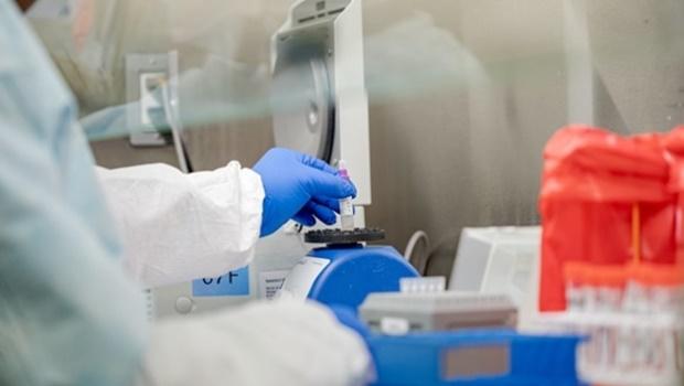 Brasil entra em rede global de produção de vacinas e testes contra Covid-19