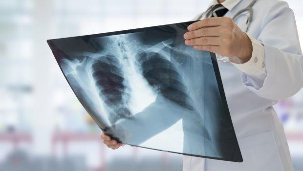 Universidades desenvolvem apoio a diagnóstico da Covid-19 com raio-x