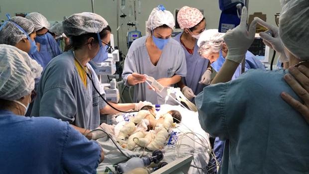 Morre uma das gêmeas siamesas após cirurgia de emergência