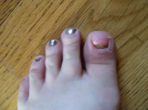 ingrowntoenail