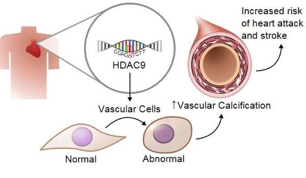 Study identifies role of specific gene in hardening of blood vessel walls