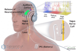 Serenity System Tinnitus Treatment