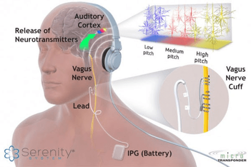 Serenity System Tinnitus Treatment
