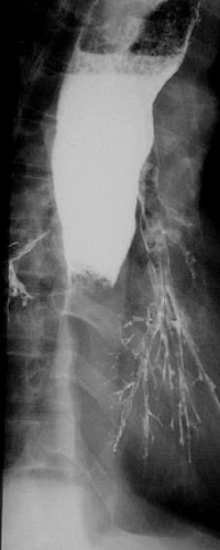 Complete obstruction to the flow of barium in this patient. The proximal oesophagus is dilated and there is a sharp cut off to the barium column characteristic for an impacted food bolus above a stricture. In this patient barium has aspirated into the bronchial tree and is outlining the lower lobe bronchi. This is not a serious complication unless gastrografin contrast has been used instead of barium