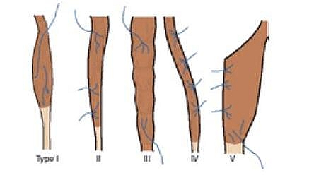 Mathes and Nahai Classification of Muscle Flaps