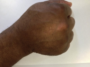 Hypopigmentation Of The Dorsum Of The Hand Following