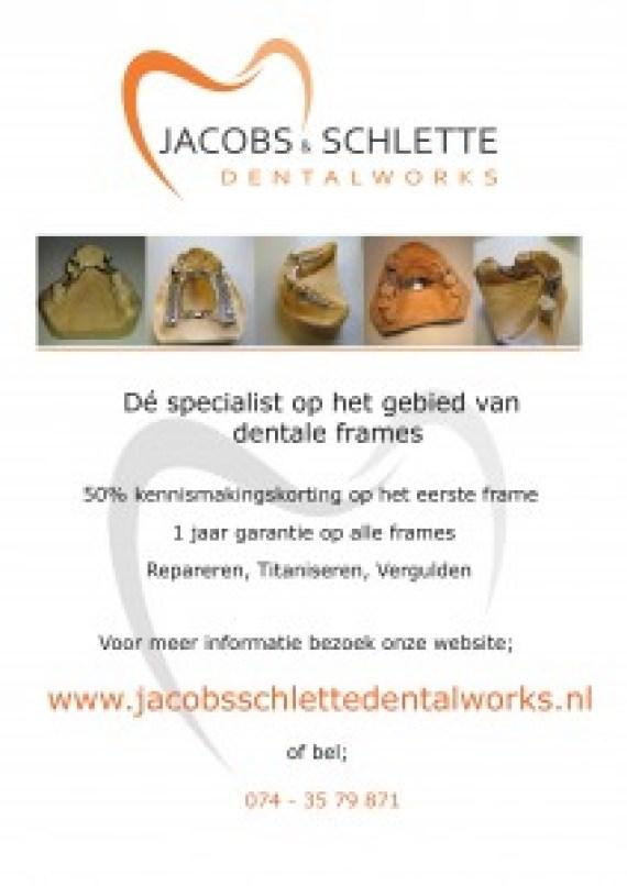 Jacobs & Schlette Dentalworks Frametechniek