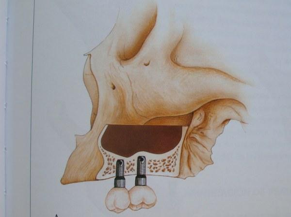 curso-implantes-048