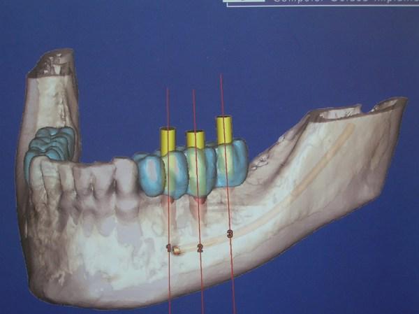 curso-implantes-061