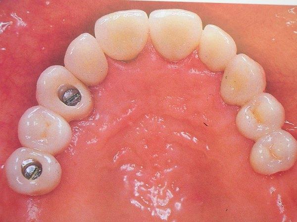 curso-implantes-071
