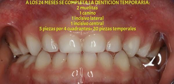 Fórmula dentaria caduca 2muelas+1canino+1incisivo lateral+1incisivo central = 5 piezas por cuadrante x 4 cuadrantes = 20 piezas temporarias